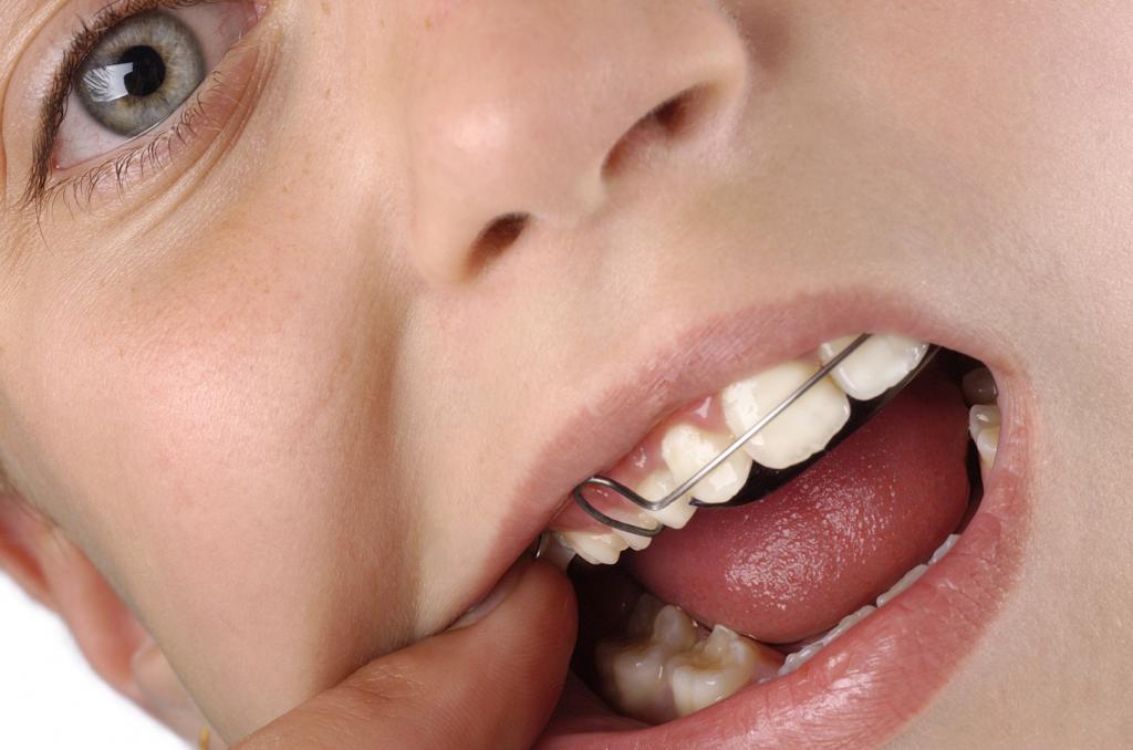 ortodonciainfantil
