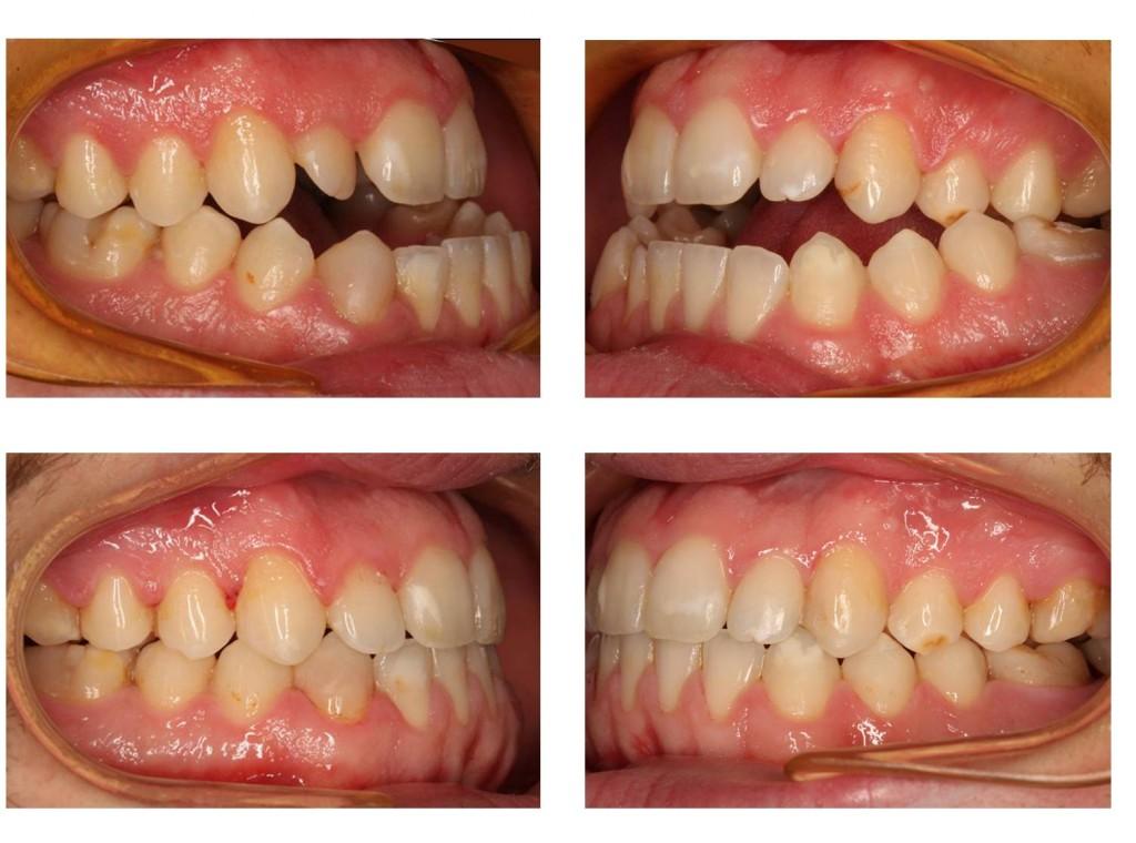 Caso clínico 2 lateral