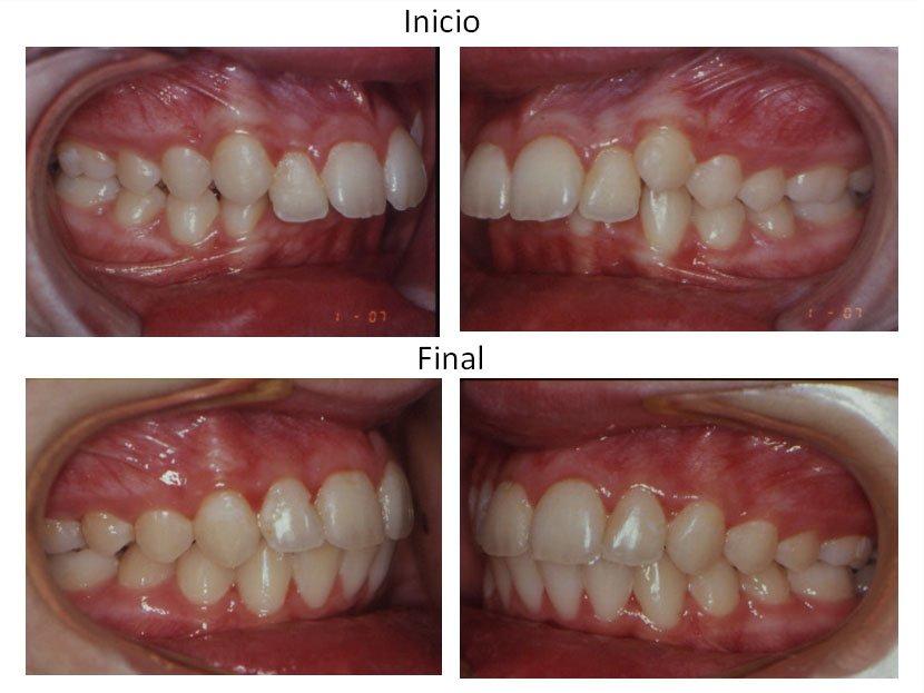 310557-ortodoncia-carlton-dentaduras-w1024
