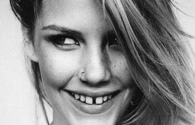img_como_corregir_el_diastema_dental_23744_600