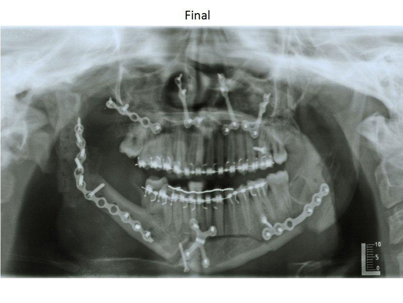 311771--ortodoncia-carlton-patologia3.w1024