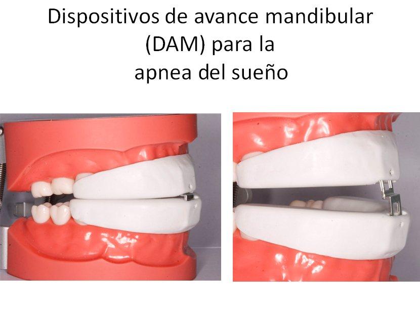 320441--ortodoncia-carlton-apnea-1.w1024