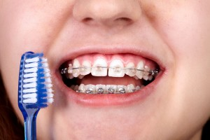 45241139 - teeth with orthodontic brackets. dental health care.