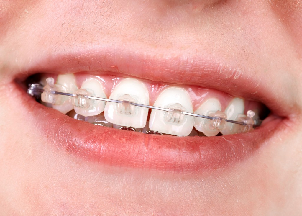 45791521 - teeth with orthodontic brackets. dental health care.