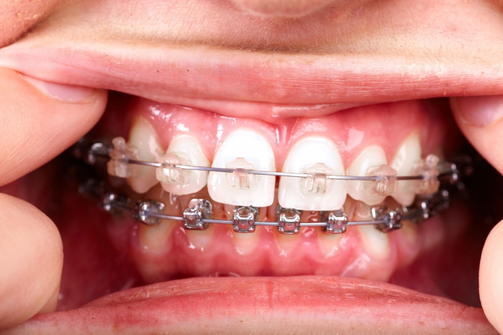 45241141 - teeth with orthodontic brackets. dental health care.