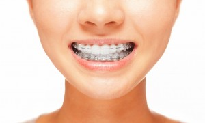 37663141 - female smile: teeth with braces, dental care concept, front view