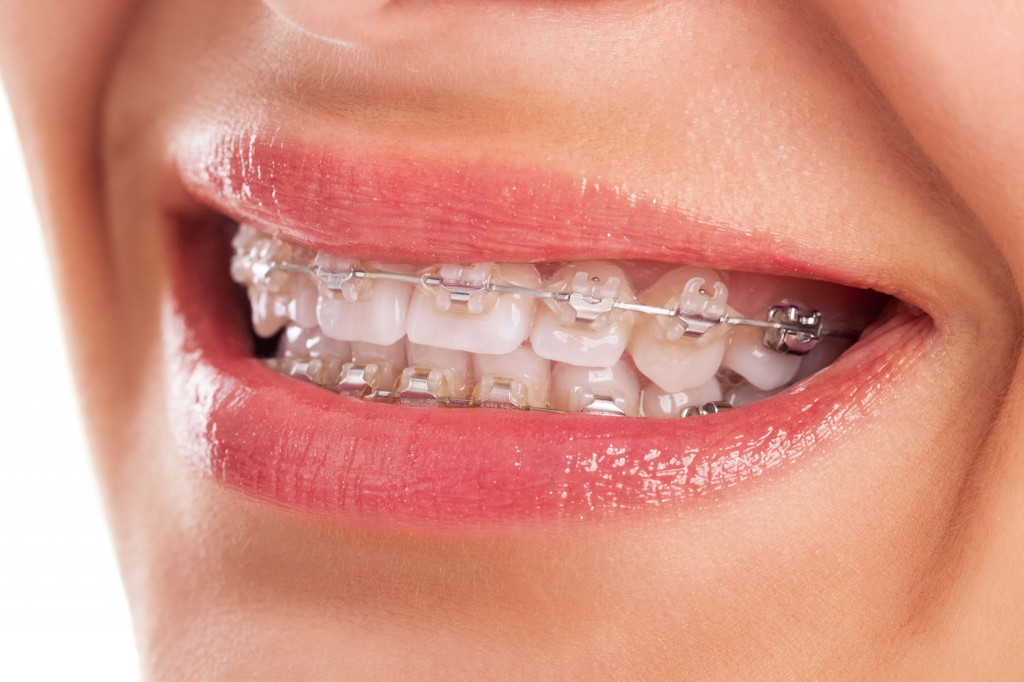 27849488 - perfect teeth with braces isolated