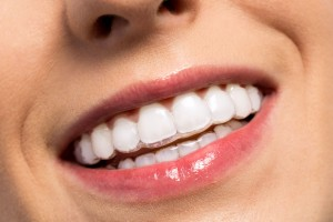 57006397 - smiling girl wearing invisible teeth braces close up