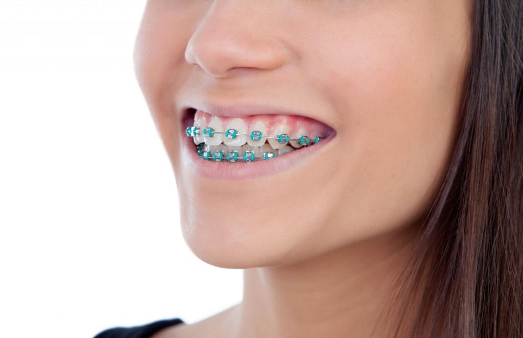 aparato dental