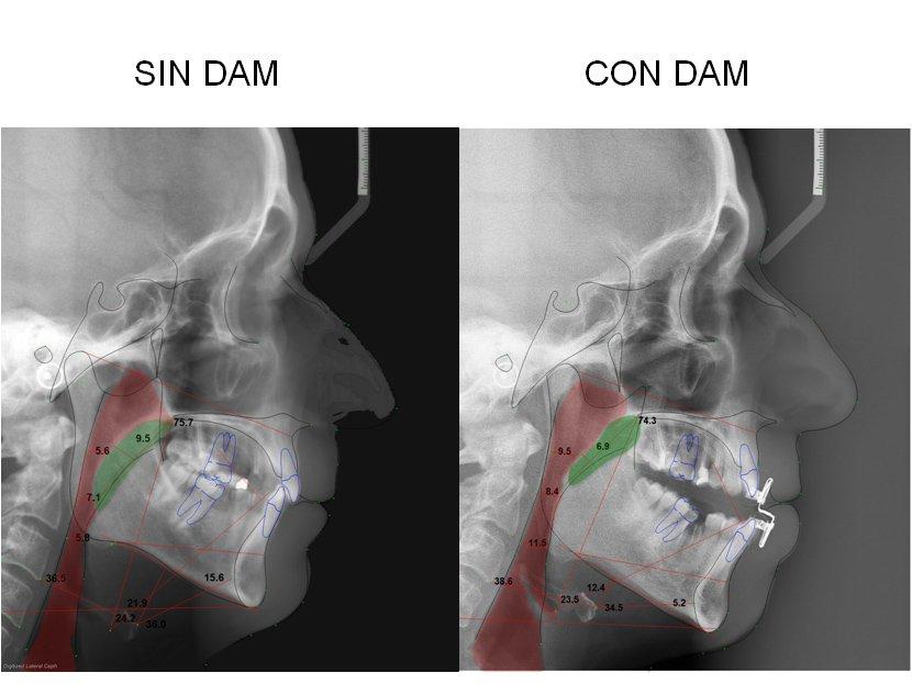 311794--ortodoncia-carlton-apnea3.w1024