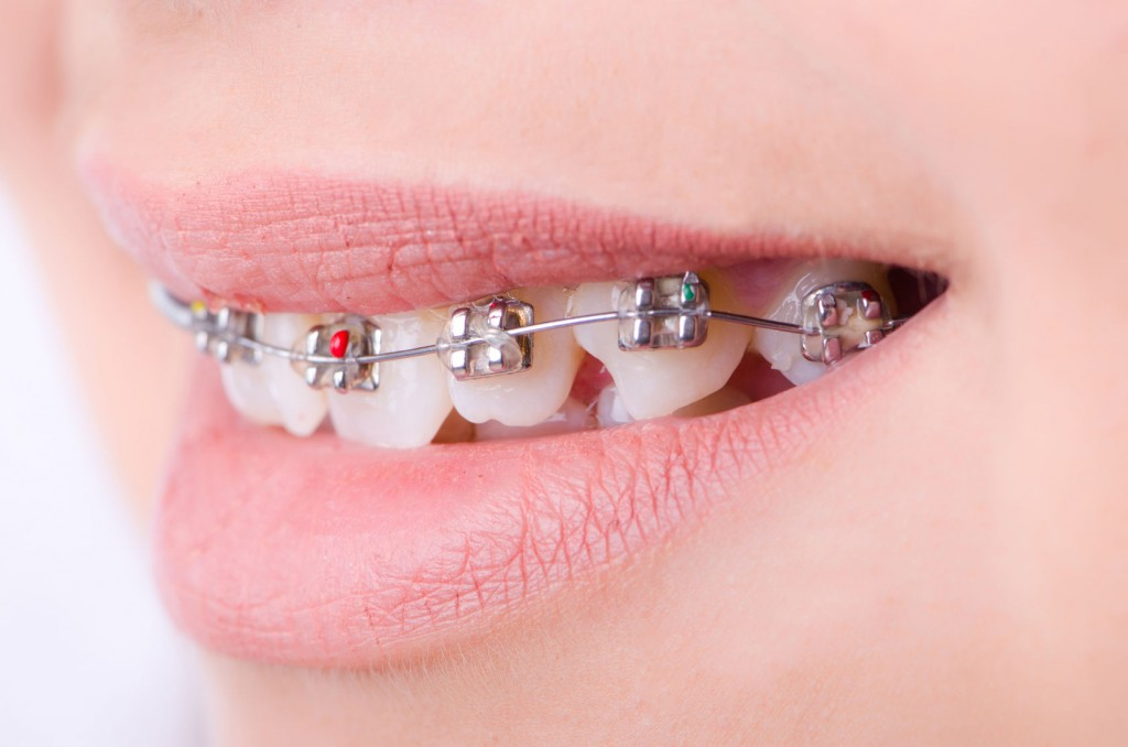 31502576 - mouth with brackets braces in medical concept