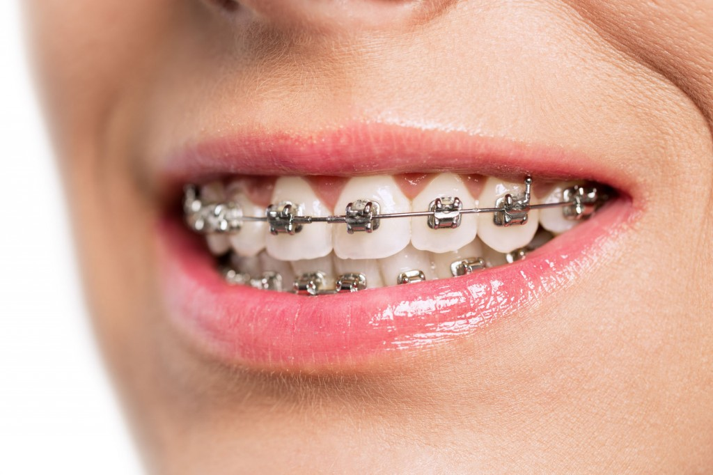 48196517 - teeth with braces isolated on white