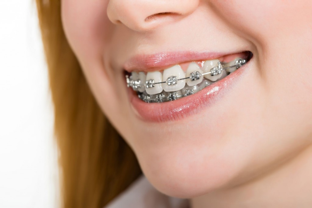 17576923 - beautiful young woman with brackets on teeth close up