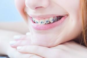 54768988 - teeth with braces.