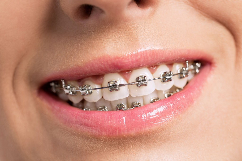ortodoncia mixta