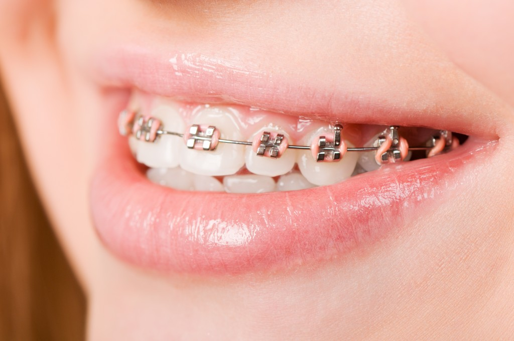 12916249 - beautiful young woman with brackets on teeth close up