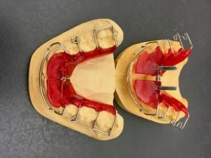 disyuntor dental