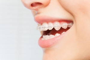 90000566 - womans smile with clear dental braces on teeth