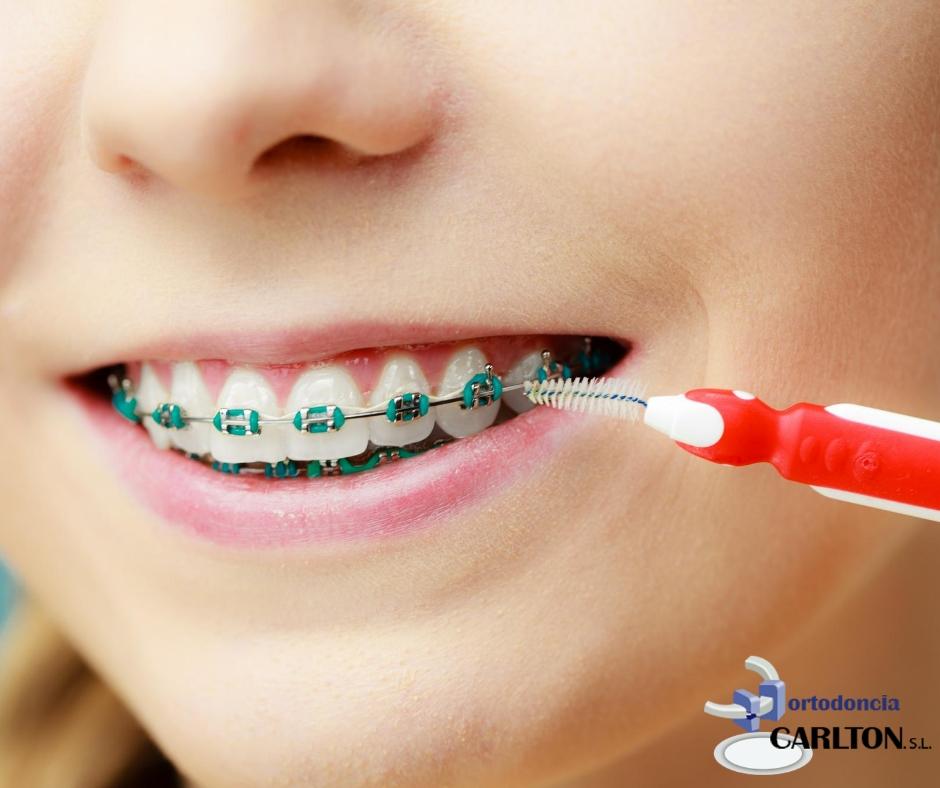 Cuidados de la ortodoncia en navidades.